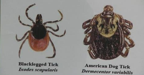 blacklegged tick and american dog tick